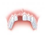 Die einzelne Zahnlücke