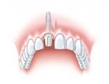 Das Implantat mit Aufbau aus weißem Zirkoniumdioxid