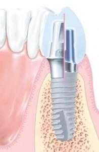Xive-Implantat, Schnittbild durch Implantat, Aufbaupfosten und Krone